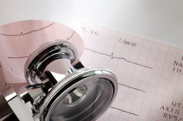 EKG Services
